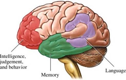 الزهايمر الخرف المبكر Alzheimer's disease alzhei10.jpg