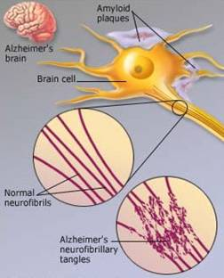 الزهايمر الخرف المبكر Alzheimer's disease alzhei11.jpg