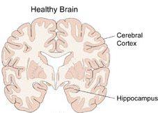الزهايمر الخرف المبكر Alzheimer's disease alzhei13.jpg