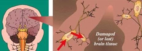 الزهايمر الخرف المبكر Alzheimer's disease alzhei16.jpg