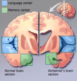 الزهايمر الخرف المبكر Alzheimer's disease alzhei17.jpg