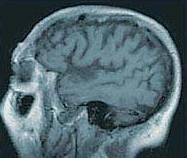 الزهايمر الخرف المبكر Alzheimer's disease alzhei20.jpg