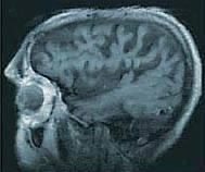 الزهايمر الخرف المبكر Alzheimer's disease alzhei22.jpg